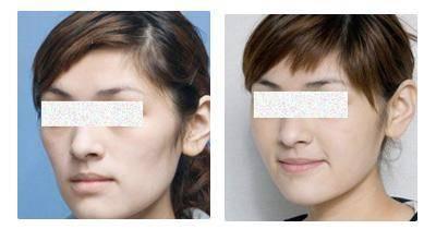 爱贝芙去眼角细纹手术术后护理?