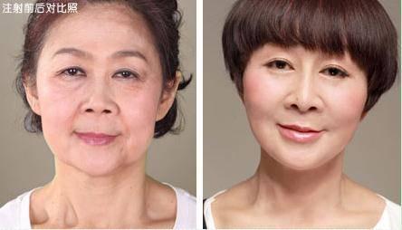 自体脂肪去眉间纹手术术后护理?