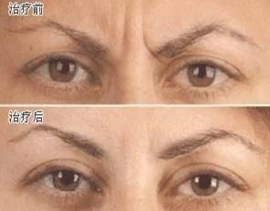 去眉间纹手术术后护理?