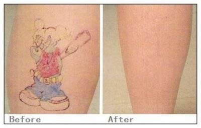 化学剥脱去纹身手术术后护理?
