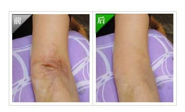 烧伤疤痕修复手术术后护理?
