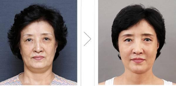 内窥镜除皱去抬头纹手术术后护理?