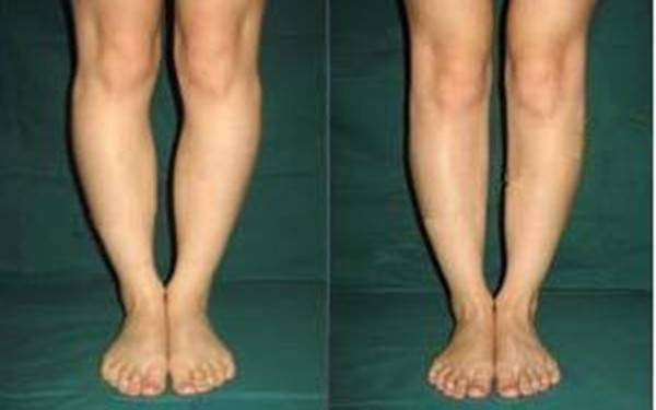 做x型腿矫正手术麻醉方式是什么?