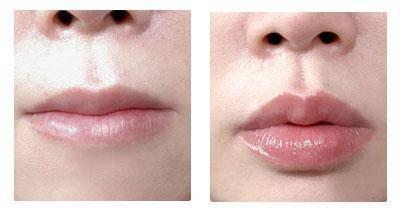 吸脂瘦脸手术术后护理?
