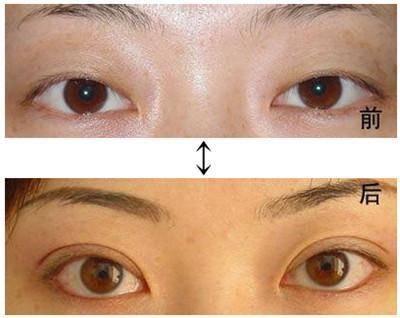 做眼部综合手术时间是多久?