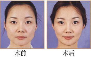 做瘦脸失败修复有没有并发症