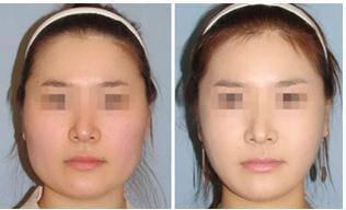 做颊脂肪垫切除瘦脸有没有并发症