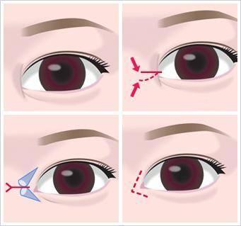 开内眼角手术的方法是什么?