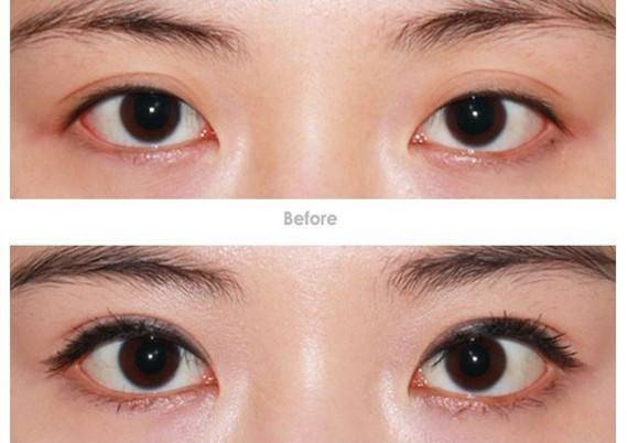 韩式开眼角手术时间需要多久?