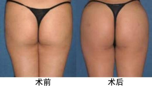 激光溶脂瘦臀手术注意事项是什么?