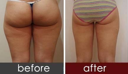 射频溶脂瘦臀手术注意事项是什么?