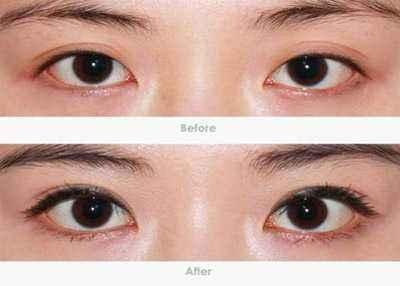 开内眼角手术时间需要多久?