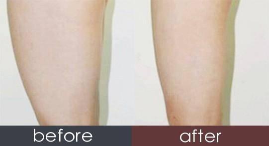 做激光溶脂瘦大腿手术多少钱?