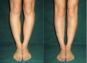 做o型腿矫正手术多少钱?