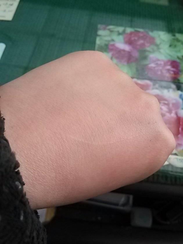 冻疮疤痕修复手术注意事项是什么?
