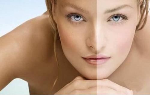 做皮肤美白手术多少钱?