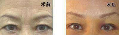 脉冲光去眉间纹治疗方式是什么?