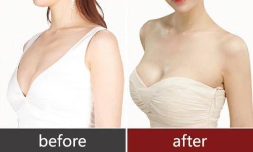 做硅胶乳房再造手术多少钱?