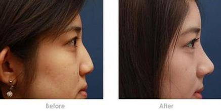 自体耳软骨隆鼻手术安全吗?