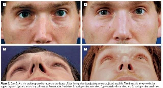 鼻翼不對稱矯正手術安全嗎?