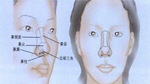 假体垫鼻基底手术安全吗?