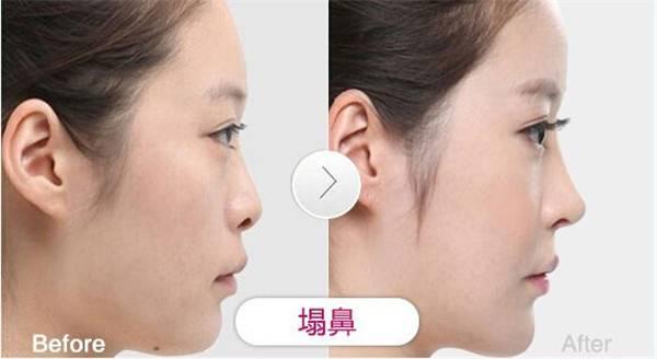 做膨体隆鼻价格要多少?
