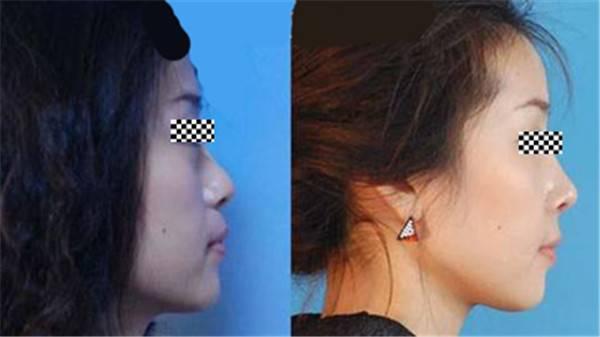 做假体隆鼻价格要多少?