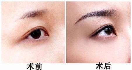 切眉一般维持多长时间?