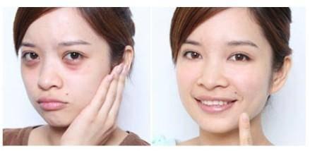 射频去黑眼圈一般维持多长时间?