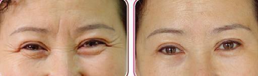 眼部综合手术需要几个疗程?