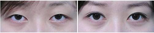 做眼角提升手术多少钱?