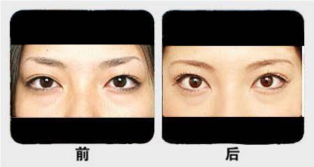 开眼角失败修复手术需要几个疗程?
