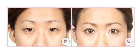 做去黑眼圈手术多少钱?