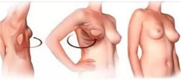 做硅胶乳房再造贵吗