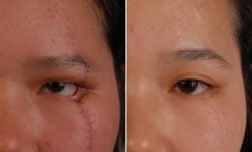 做面部疤痕修復多少錢