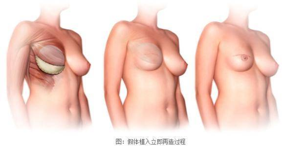 做假体乳房再造多少钱