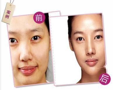 膨体隆鼻手术术后护理?