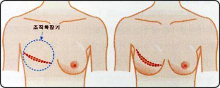 做乳房再造失败修复风险有哪些