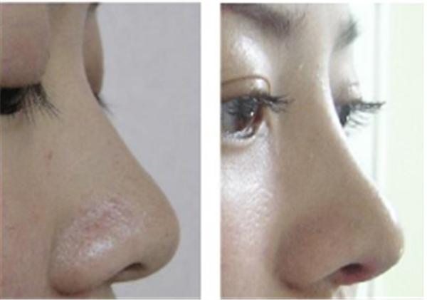 做膨体隆鼻效果好不好?