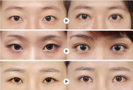 眼部综合手术缺点有哪些?