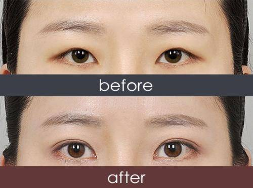 韩式三点双眼皮手术缺点有哪些?