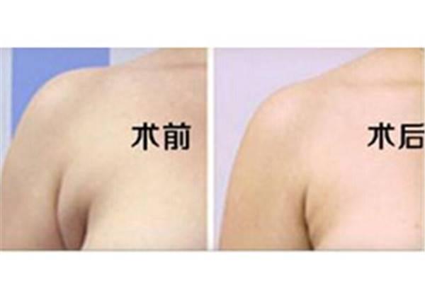做去副乳失敗修復大概需要多少錢?