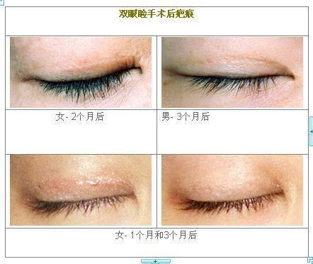 眼睑疤痕修复多久能恢复?