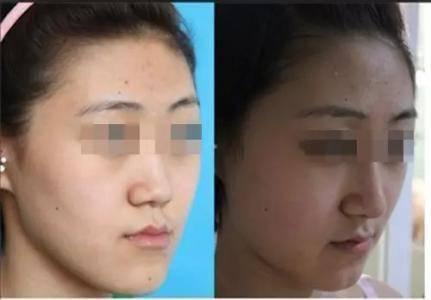 做膨体垫鼻基底护理方法