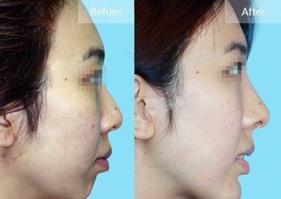 做隆鼻失败修复能维持多久