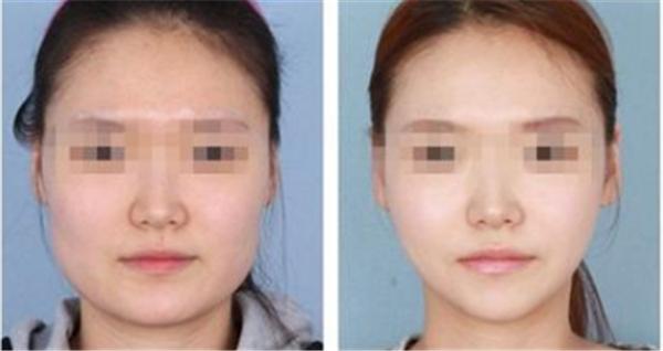 做瘦脸大概需要多少钱?