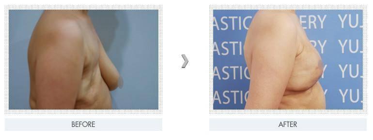 做自体脂肪乳房再造有副作用吗