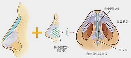 做自体隆鼻有副作用吗