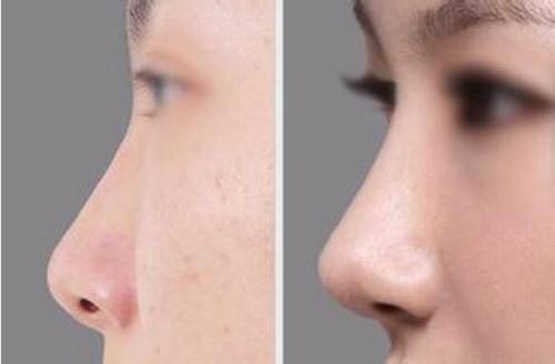 做自体肋软骨隆鼻有副作用吗
