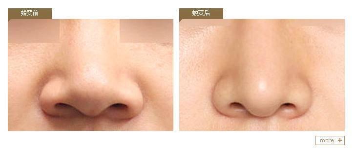 做自体耳软骨隆鼻优点是什么